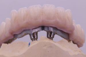 Prodenta 3D teoriniai kursai - implantų atraminės sijos